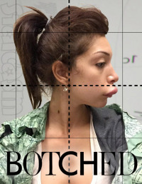 Botched Season 1 (2014)